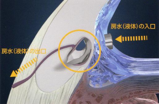 iStent手術風景